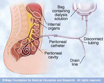 Illustration showing peritoneal dialysis